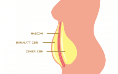 Mi is az a zsigeri zsír, azaz más néven a viscerális zsír?
